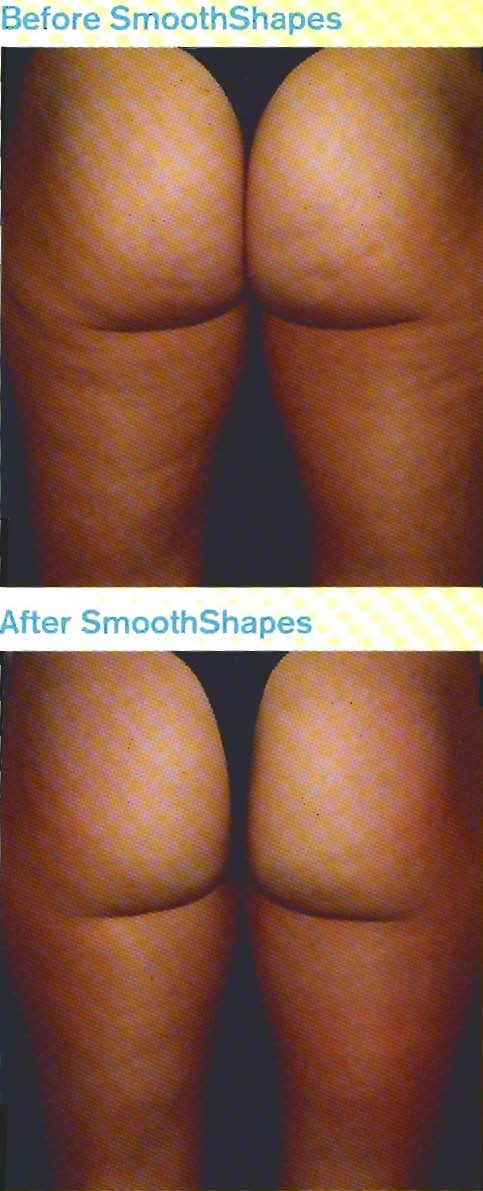 Find out more about Smooth Shapes in Charleston SC